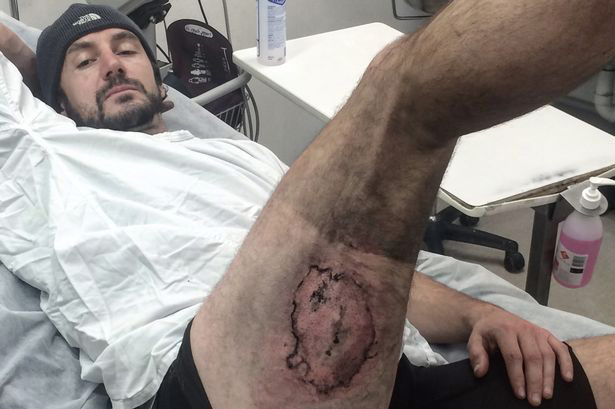 Cyclist in Australia have lost their skin after the explosion of the iPhone 6 in your pocket [photos]