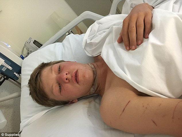Apple earphones nearly decapitated 16-year-old biker in Australia [photo]