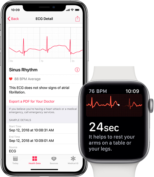 Apple Watch Series 4 will be able to identify ECG since watchOS 5.1.2